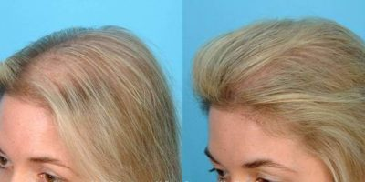 Hair-re-growth-program-The-Beauty-and-Cosmetic-Clinic-Sydney-CBD-3