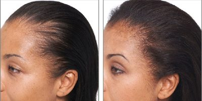 Hair-re-growth-program-The-Beauty-and-Cosmetic-Clinic-Sydney-CBD-4