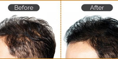 Hair-re-growth-program-The-Beauty-and-Cosmetic-Clinic-Sydney-CBD-5