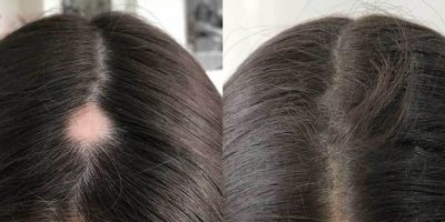 Hair-re-growth-program-The-Beauty-and-Cosmetic-Clinic-Sydney-CBD-6