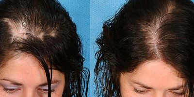 Hair-re-growth-program-The-Beauty-and-Cosmetic-Clinic-Sydney-CBD-7