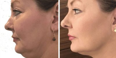 Lift-and-tighten-The-Beauty-and-Cosmetic-Clinic-Sydney-CBD-5