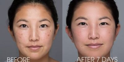 Pigmentation-and-melasma-rejuvenation-The-Beauty-and-Cosmetic-Clinic-Sydney-CBD-2