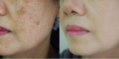 Pigmentation-and-melasma-rejuvenation-The-Beauty-and-Cosmetic-Clinic-Sydney-CBD-3