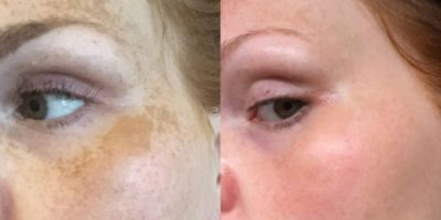 Pigmentation-and-melasma-rejuvenation-The-Beauty-and-Cosmetic-Clinic-Sydney-CBD-4