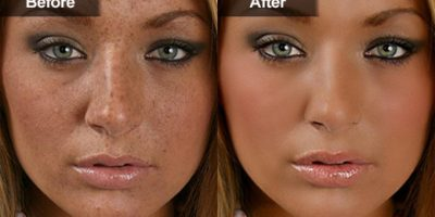 Pigmentation-and-melasma-rejuvenation-The-Beauty-and-Cosmetic-Clinic-Sydney-CBD-6