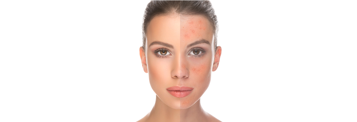 Pigmentation-and-melasma-rejuvenation-The-Beauty-and-Cosmetic-Clinic-Sydney-CBD