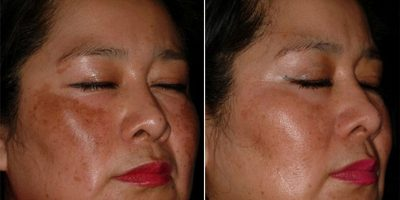 Repairing-skin-texture-The-Beauty-and-Cosmetic-Clinic-Sydney-CBD-4