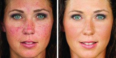 Rosacea-The-Beauty-and-Cosmetic-Clinic-Sydney-CBD-2