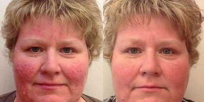 Rosacea-The-Beauty-and-Cosmetic-Clinic-Sydney-CBD-3
