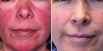 Rosacea-The-Beauty-and-Cosmetic-Clinic-Sydney-CBD-5