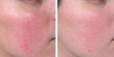 Rosacea-The-Beauty-and-Cosmetic-Clinic-Sydney-CBD-6