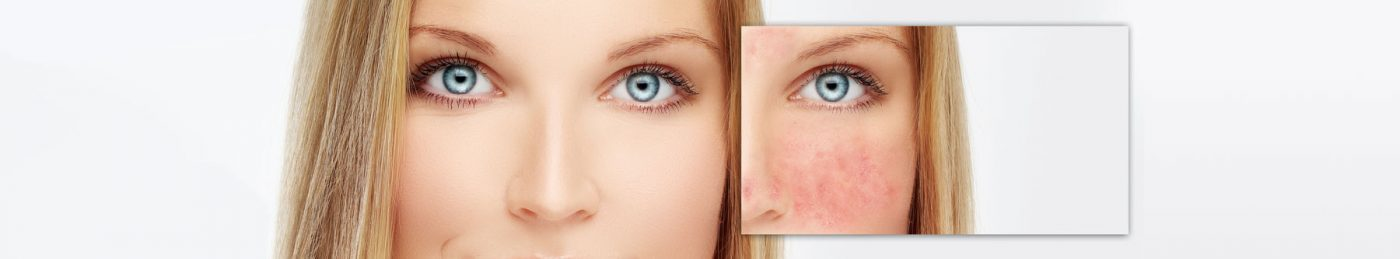 Rosacea-The-Beauty-and-Cosmetic-Clinic-Sydney-CBD