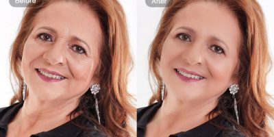 Wrinkle-and-smooth-rejuvenation-The-Beauty-and-Cosmetic-Clinic-Sydney-CBD