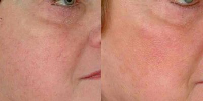 facial-vein-removal-The-Beauty-and-Cosmetic-Clinic-Sydney-CBD-2