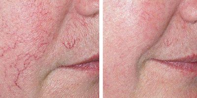 facial-vein-removal-The-Beauty-and-Cosmetic-Clinic-Sydney-CBD-4
