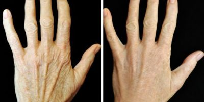 hand-rejuvenation-The-Beauty-and-Cosmetic-Clinic-Sydney-CBD