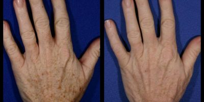 hand-rejuvenation-The-Beauty-and-Cosmetic-Clinic-Sydney-CBD=2