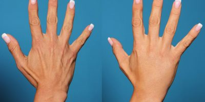 hand-rejuvenation-The-Beauty-and-Cosmetic-Clinic-Sydney-CBD=4