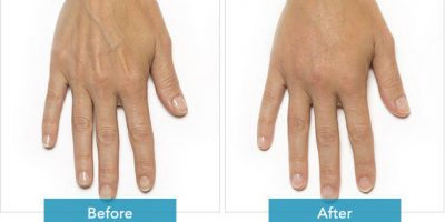hand-rejuvenation-The-Beauty-and-Cosmetic-Clinic-Sydney-CBD=5