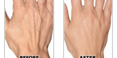 hand-rejuvenation-The-Beauty-and-Cosmetic-Clinic-Sydney-CBD=6