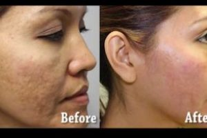 Asian-Face-Acne-2-The-Beauty-cosmetic-clinic-sydney-cbd