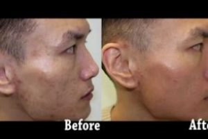 Asian-Face-Acne-The-Beauty-cosmetic-clinic-sydney-cbd