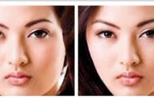 Asian-Face-Anti-Wrinkle-The-Beauty-cosmetic-clinic-sydney-cbd