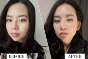 Asian-Face-Cheek-fillers-The-Beauty-cosmetic-clinic-sydney-cbd