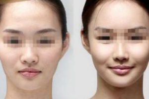 Asian-Face-Fillers-The-Beauty-cosmetic-clinic-sydney-cbd
