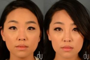 Asian-Face-Nose-correction-3-The-Beauty-cosmetic-clinic-sydney-cbd