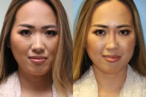 Asian-Face-Nose-correction-4-The-Beauty-cosmetic-clinic-sydney-cbd