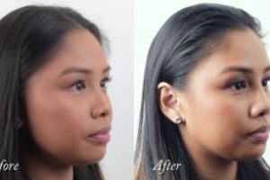 Asian-Face-Nose-correction-The-Beauty-cosmetic-clinic-sydney-cbd