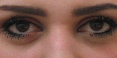 Periorbital-cosmetic-treatments-sydney-beauty-and-cosmetic-clinic-cbd-a1