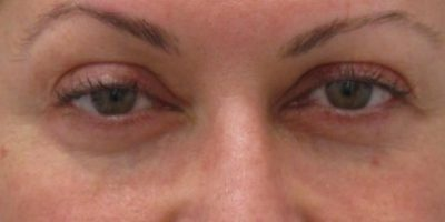 Periorbital-cosmetic-treatments-sydney-beauty-and-cosmetic-clinic-cbd-a2