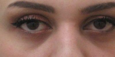 Periorbital-cosmetic-treatments-sydney-beauty-and-cosmetic-clinic-cbd-b1