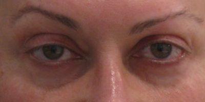 Periorbital-cosmetic-treatments-sydney-beauty-and-cosmetic-clinic-cbd-b2