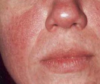 Rosacea-The_Beauty-and-cosmetic-clinic-sydney-city