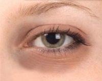 under_eye_dark_circles