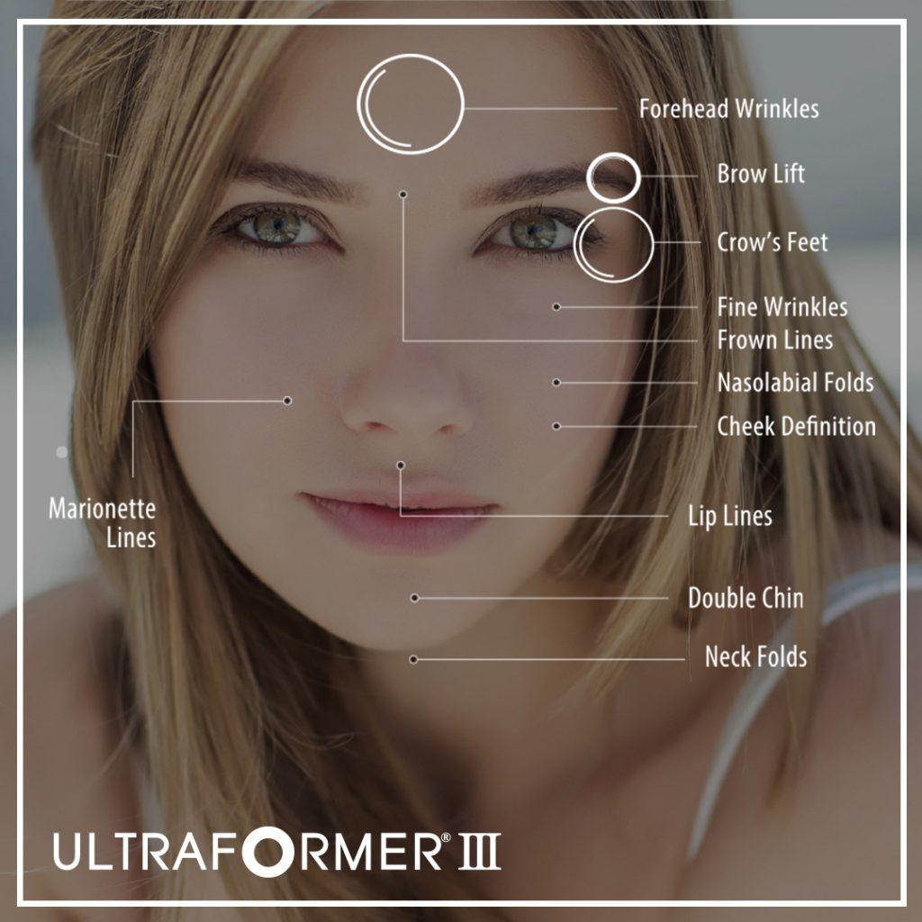 Ultraformer_HIFU_The_Beauty_Clinic_Sydney_CBD