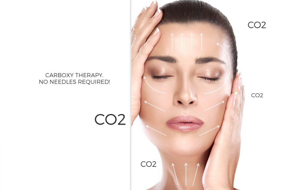 Carboxy treatment CO2 Lift