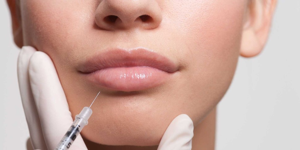 Lip_Filler_The_Beauty_and_cosmetic_Clinic_Sydney_cbd