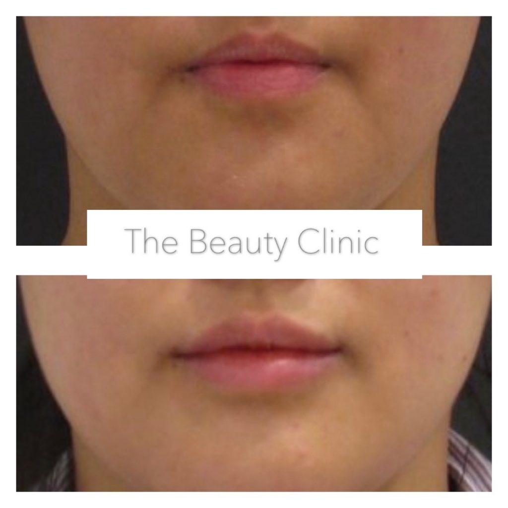Lip_filler_our_results